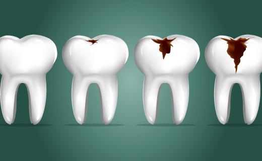 dca-blog_eating-disorders-and-dental-health