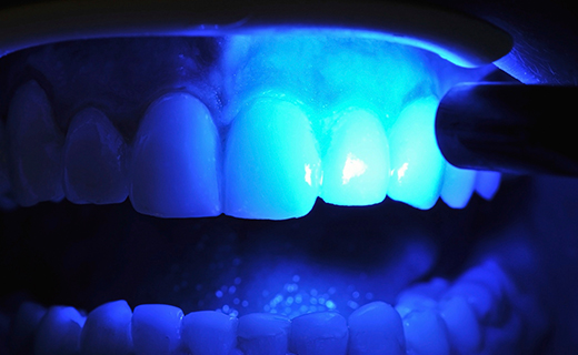 dca-blog_gum-disease-general-info